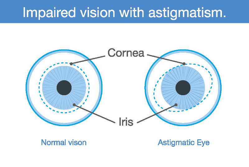 Possible view through an astigmatic eye -- Image courtesy of Eyemaginations™